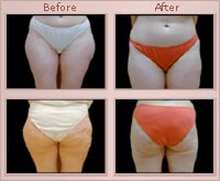 Liposuction Rochester | Buffalo | Syracuse NY